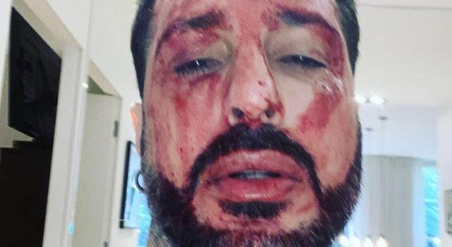 """Fabrizio Corona deve tornare in carcere. L'ex re dei paparazzi si taglia le braccia in segno di protesta e minaccia su Instagram di togliersi la vita: """"Pronto a dare la vita in questo Paese ingiusto"""""""
