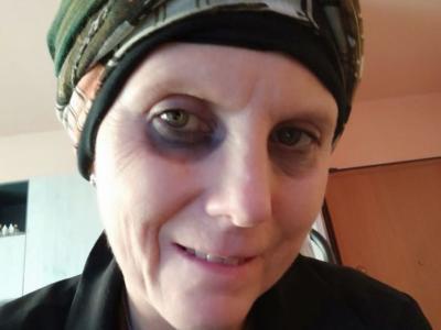 Milano, malata di cancro cerca e trova la madre biologica per curarsi: la donna si rifiuta di aiutarla